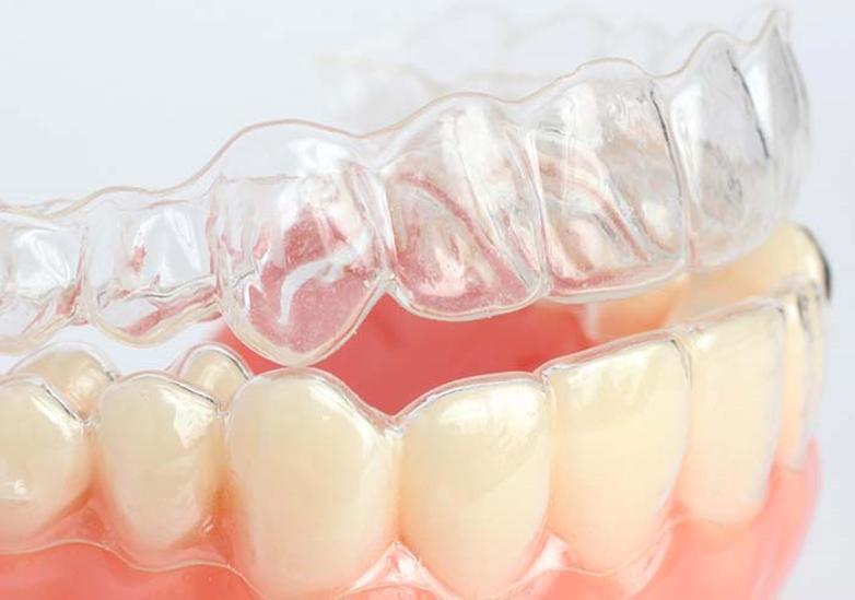 Элайнеры. Ортодонтическое лечение